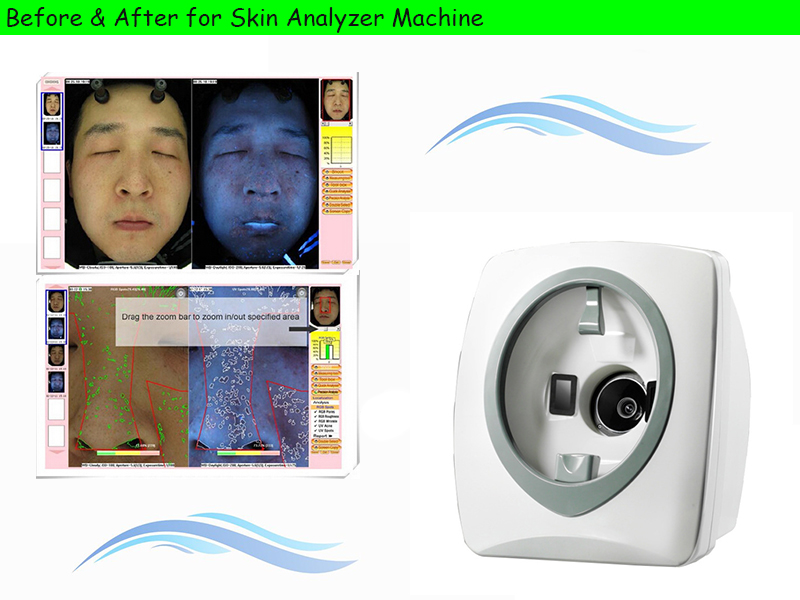 Magic Mirror For Skin Analysis